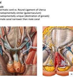male vs female inguinal canal development spermatic cord vs round ligament of uterus [ 1610 x 1222 Pixel ]