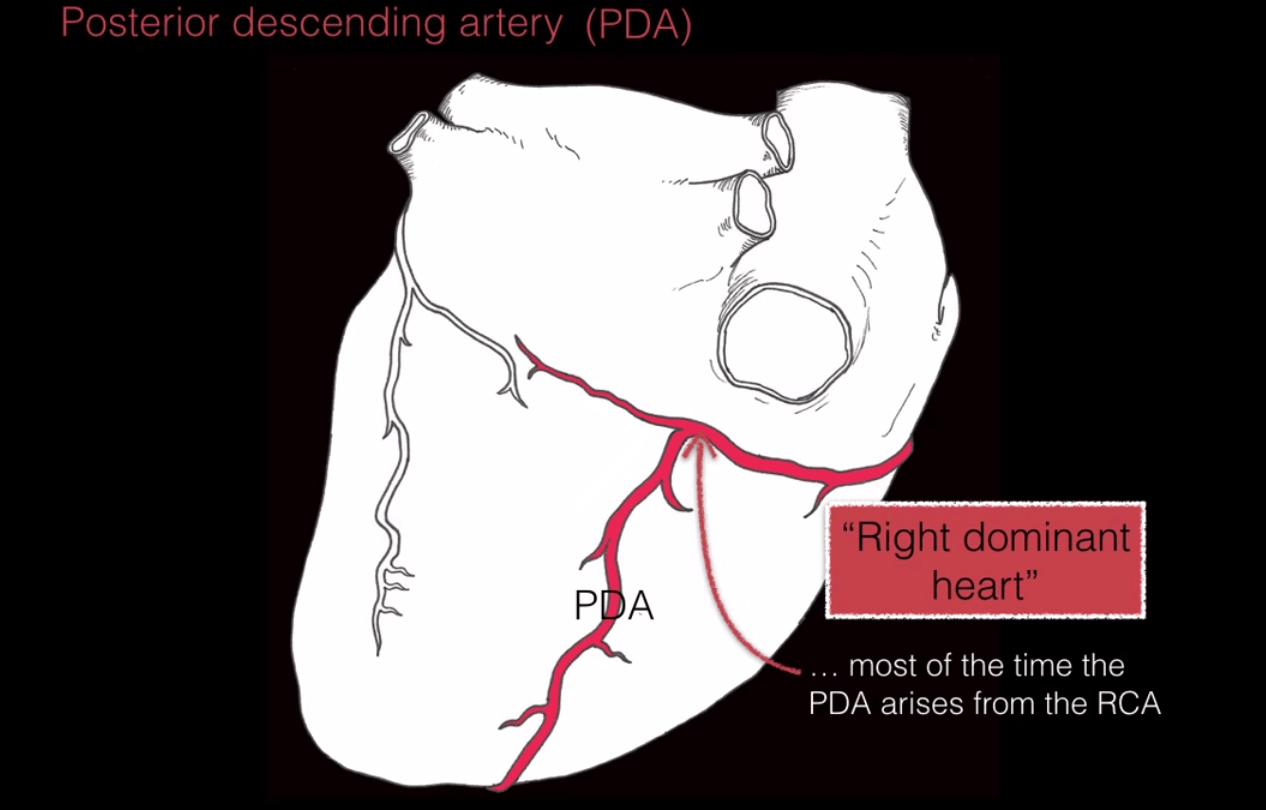 hight resolution of a right dominant heart occurs when the pda arises from the rca this is the