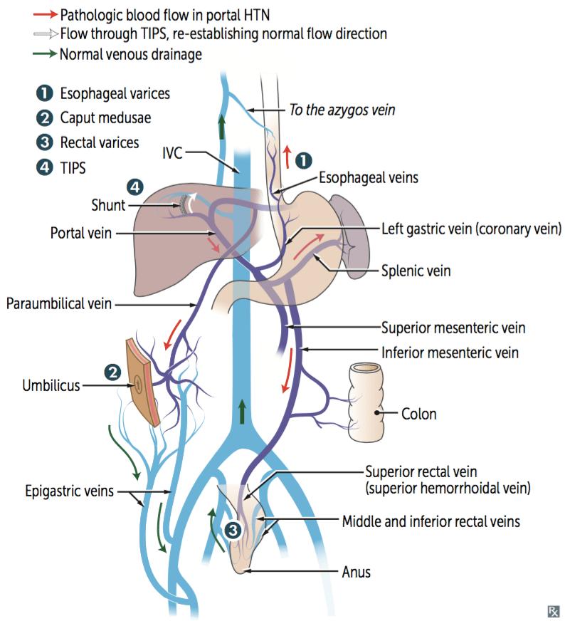 Paraumbilical Vein Caput Medusae