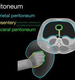 2 layers of peritoneum anchor visceral peritoneum to parietal peritoneum houses arteries veins [ 1184 x 914 Pixel ]