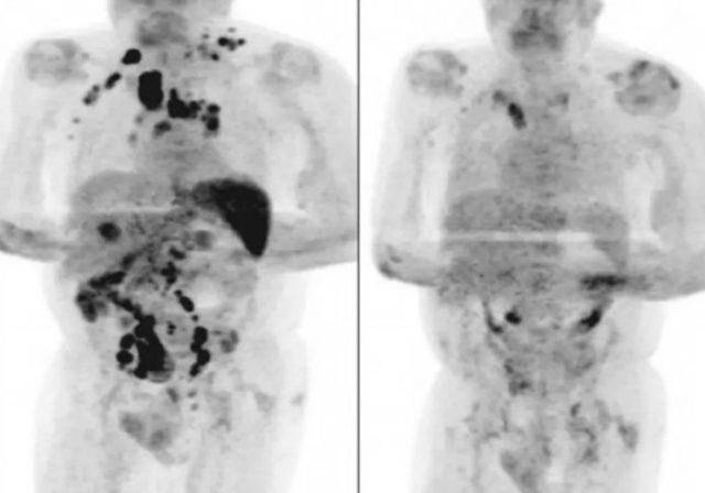Tomografias mostram a remissão do câncer do paciente após Covid - Fotos: reprodução