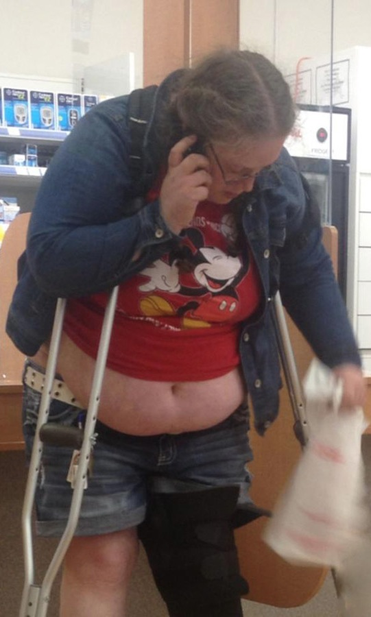 Mickey Mouse Belly and Broken Leg at Walmart  Fashion