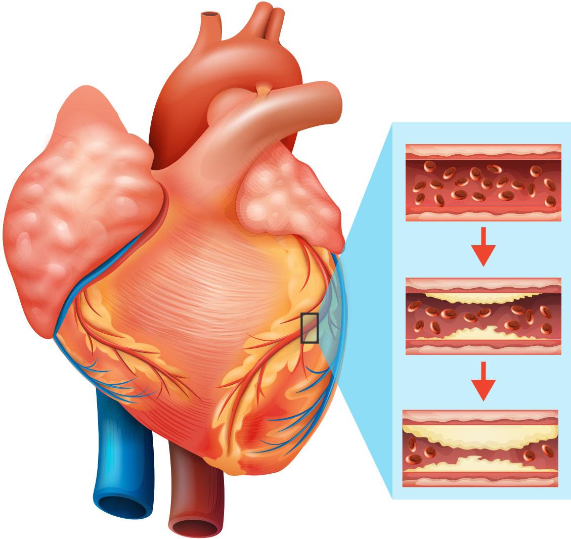 A Closer Look At Heart Disease Risk