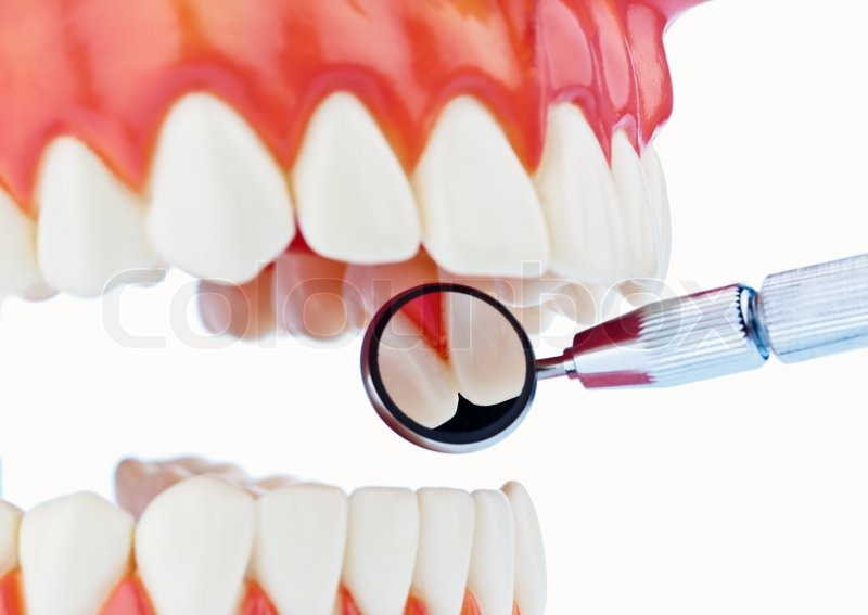 The model is a set of teeth with dental equipment Isolated on white background  Stock Photo