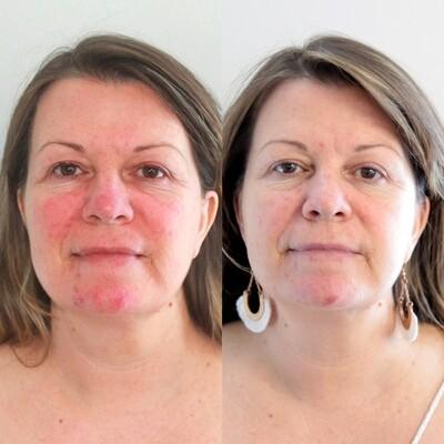 Skin Compost 3 Steps Skincare Pack