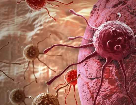 DNA mutations can reduce the risk of death in people with bowel cancer