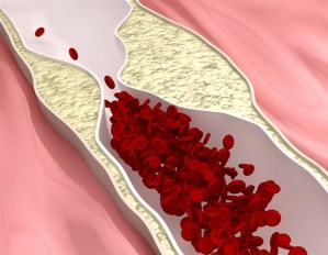 Atherosclerosis can accelerate the development of clonal hematopoiesis