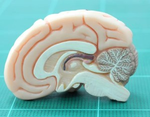 New discoveries could reduce the impact of traumatic memories