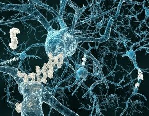 Early plasma markers help monitor the progression of Alzheimer's disease