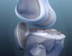 Meniscal and mechanical symptoms do not predict findings on knee arthroscopy