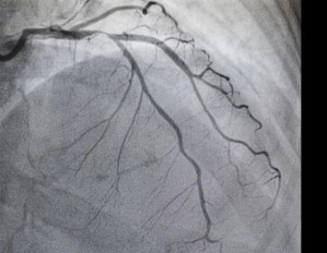 Immediate angiography for stroke patients associated with improved recovery, less disability