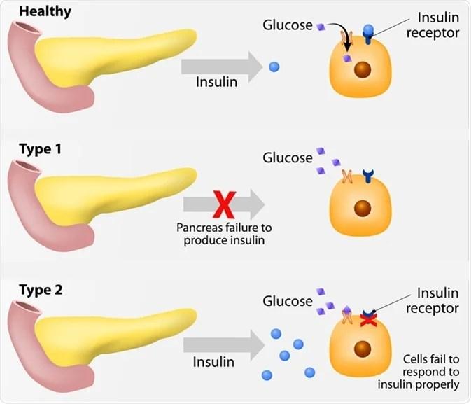 Diabetes Mellitus Subtypes