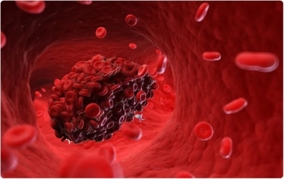 Interaction between blood clotting and SARS-CoV-2 infection