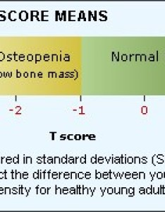 What if my bone mineral density test is abnormal also tests mydr rh