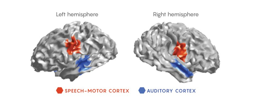 Image of the brain showing the speech-motor cortex and the auditory cortex regions
