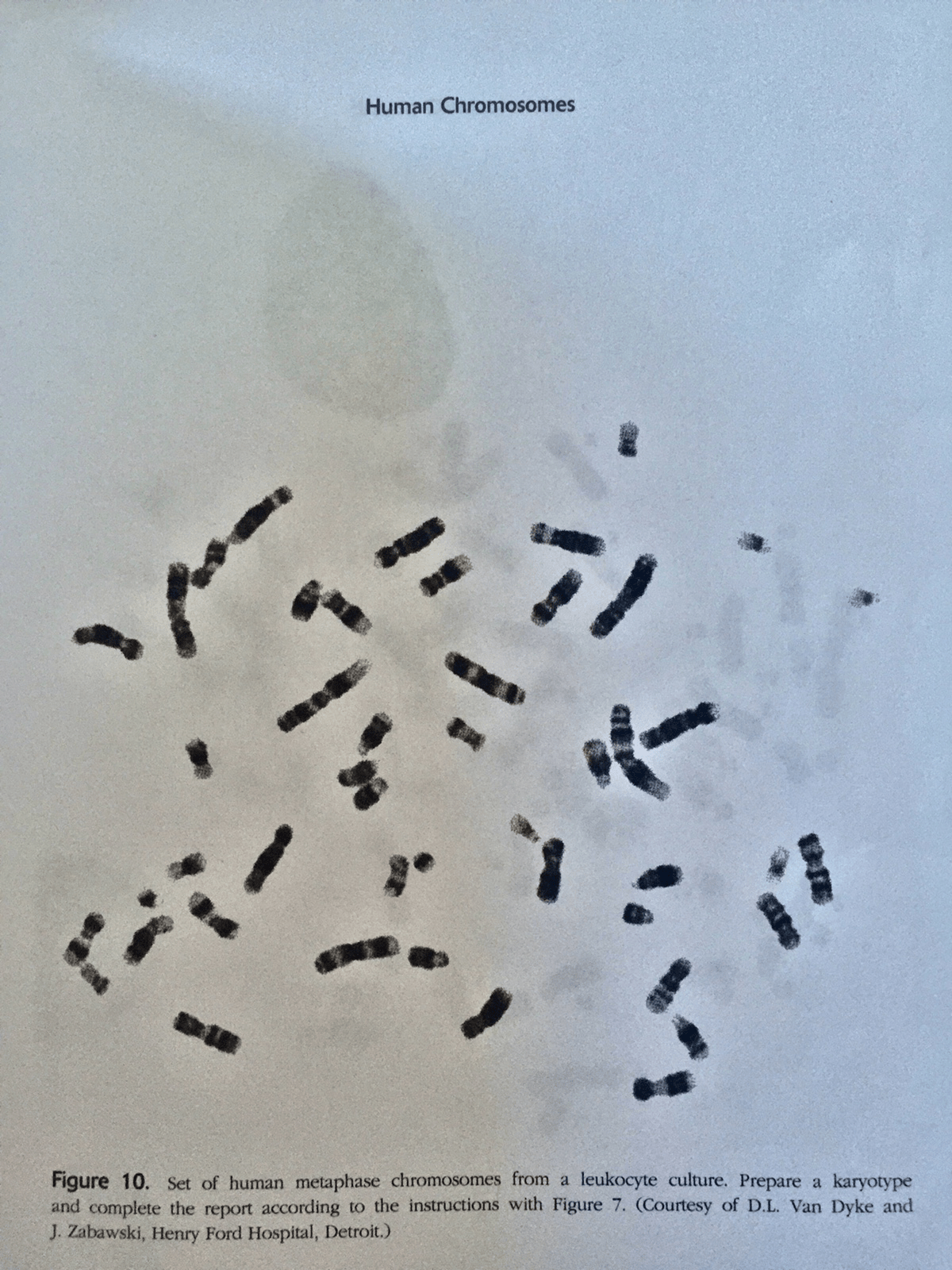 Chromosome Set Solved Photograph Illustrating A Set Of Numbered Human Me