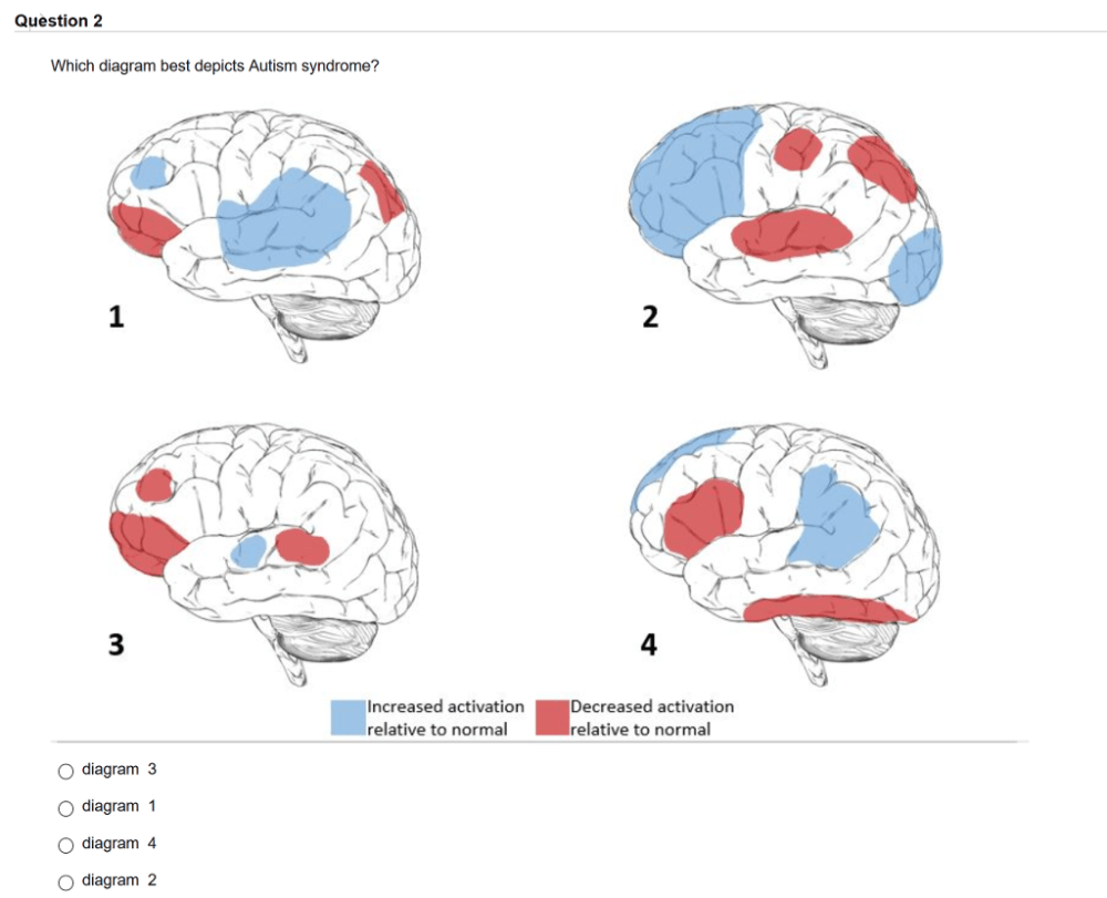 medium resolution of question2 which diagram best depicts autism syndrome 1 2 4 increased activation relative to normal