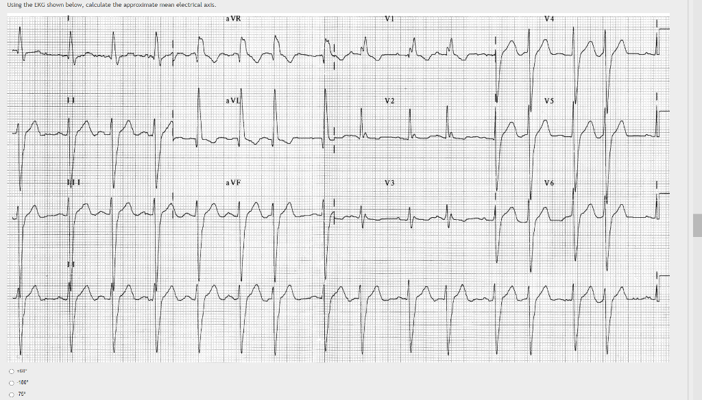Solved: Using The EKG Shown Below, Calculate The Approxima