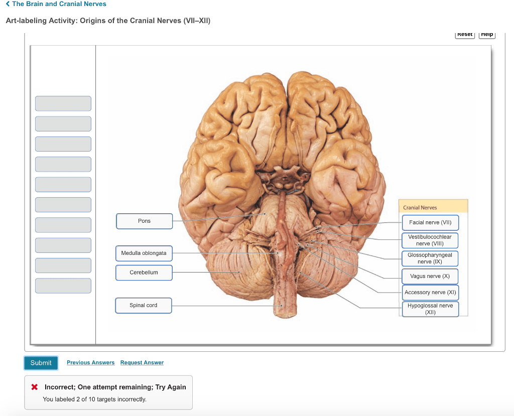 hight resolution of question the brain and cranial nerves art labeling activity origins of the cranial nerves vii xii reset heip cranial nerves pons facial nerve vii