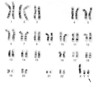 Solved: What Is A Karyotype? Below Is An Example Of A Kary