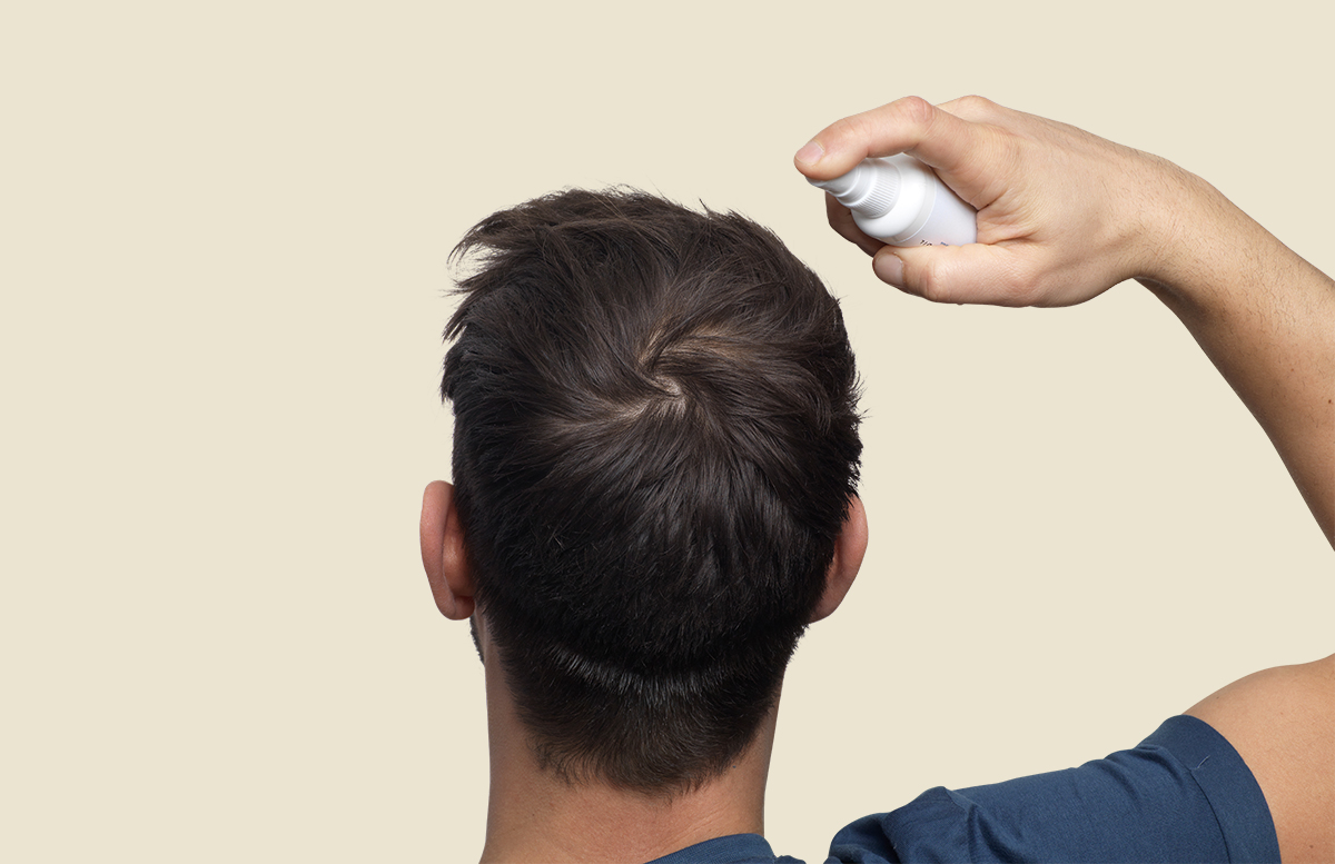 causes of your hair loss