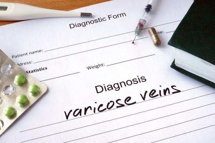 Chẩn đoán hình thức-với-chẩn đoán-varicose-veins-e1463730217407.jpg