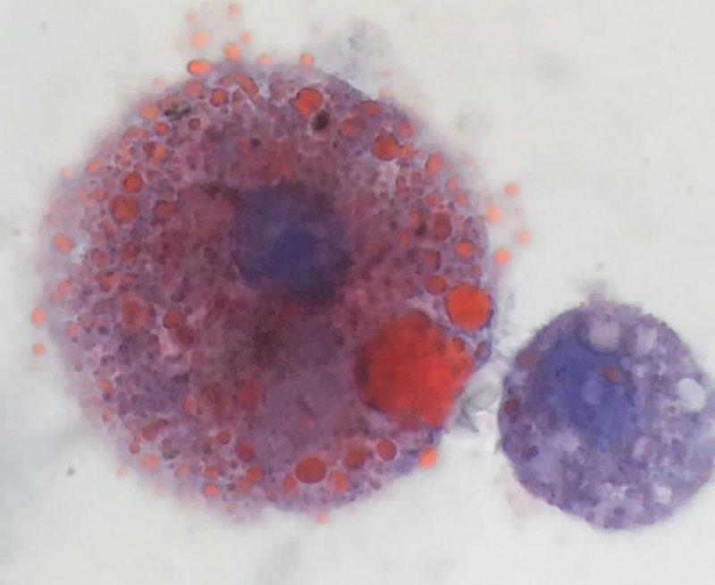 Una célula inmune cargada de aceite extraída de un paciente con VAPI en Utah (izquierda).  A la derecha, un macrófago normal.  (Cortesía de Andrew Hansen, Jordan Valley Medical Center)