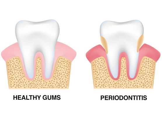 The negative effects of gum disease