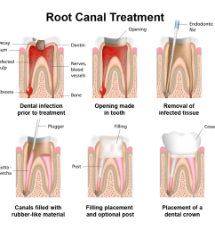 diagram of root canal  [ 1000 x 1000 Pixel ]