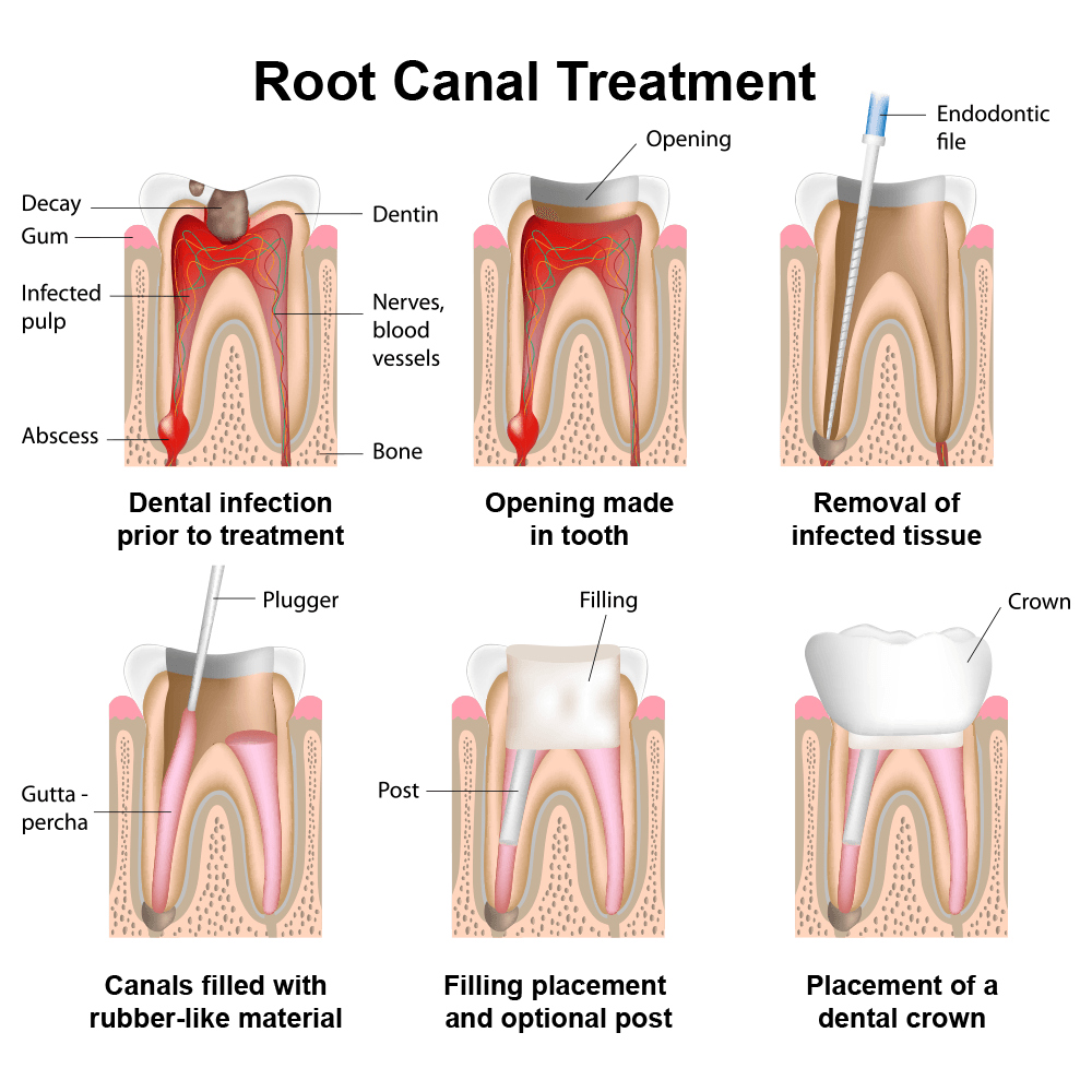 hight resolution of diagram of root canal