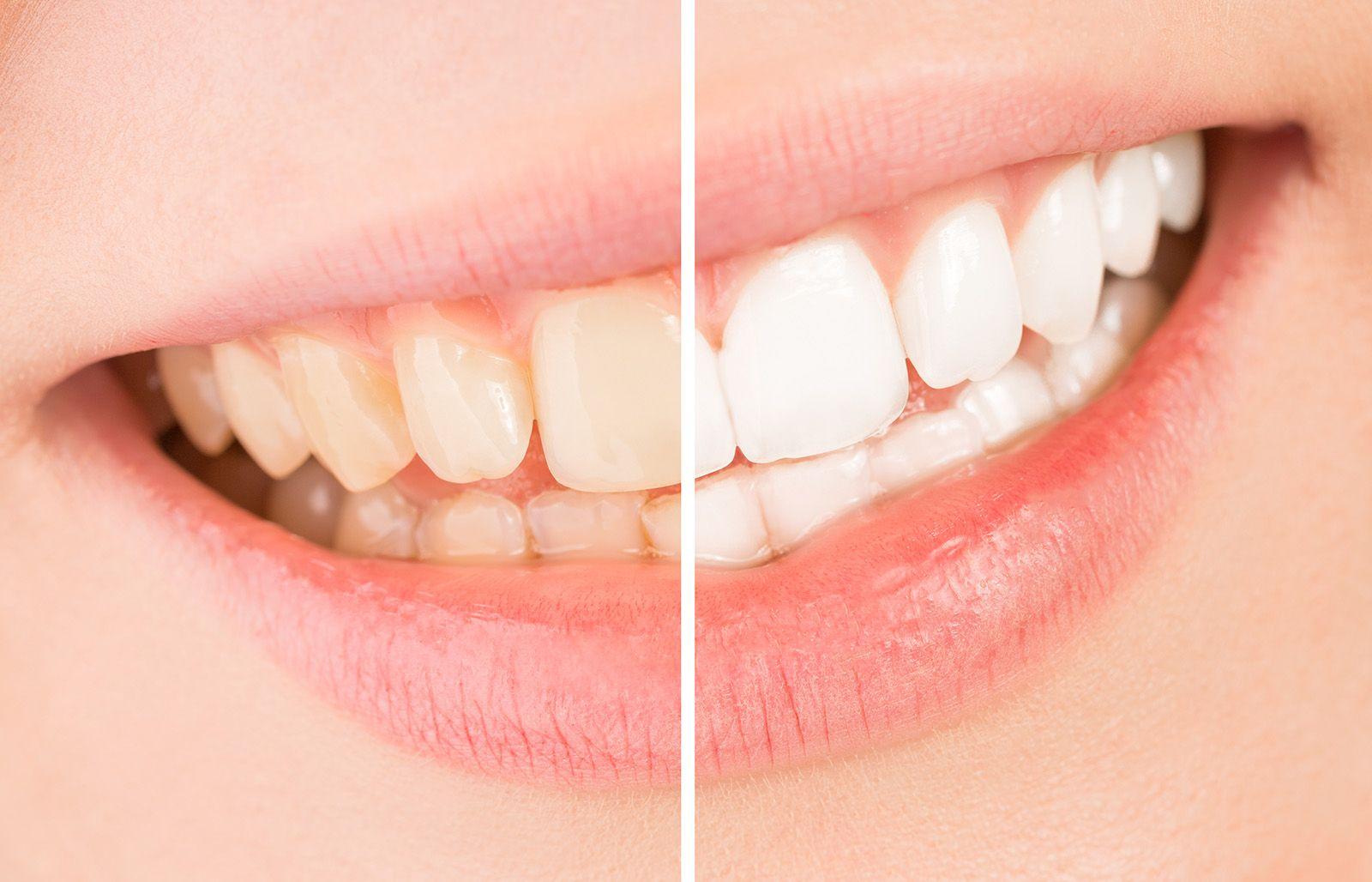 Coffee after Teeth Whitening - Lake Jackson TX - Bell Dental