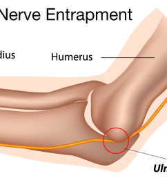 illustration demonstrating how the ulnar nerve fits underneath the medial epicondyle of the humerus  [ 1200 x 764 Pixel ]