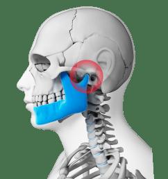digital illustration of neck and skull highlighting the tmj [ 1200 x 1200 Pixel ]
