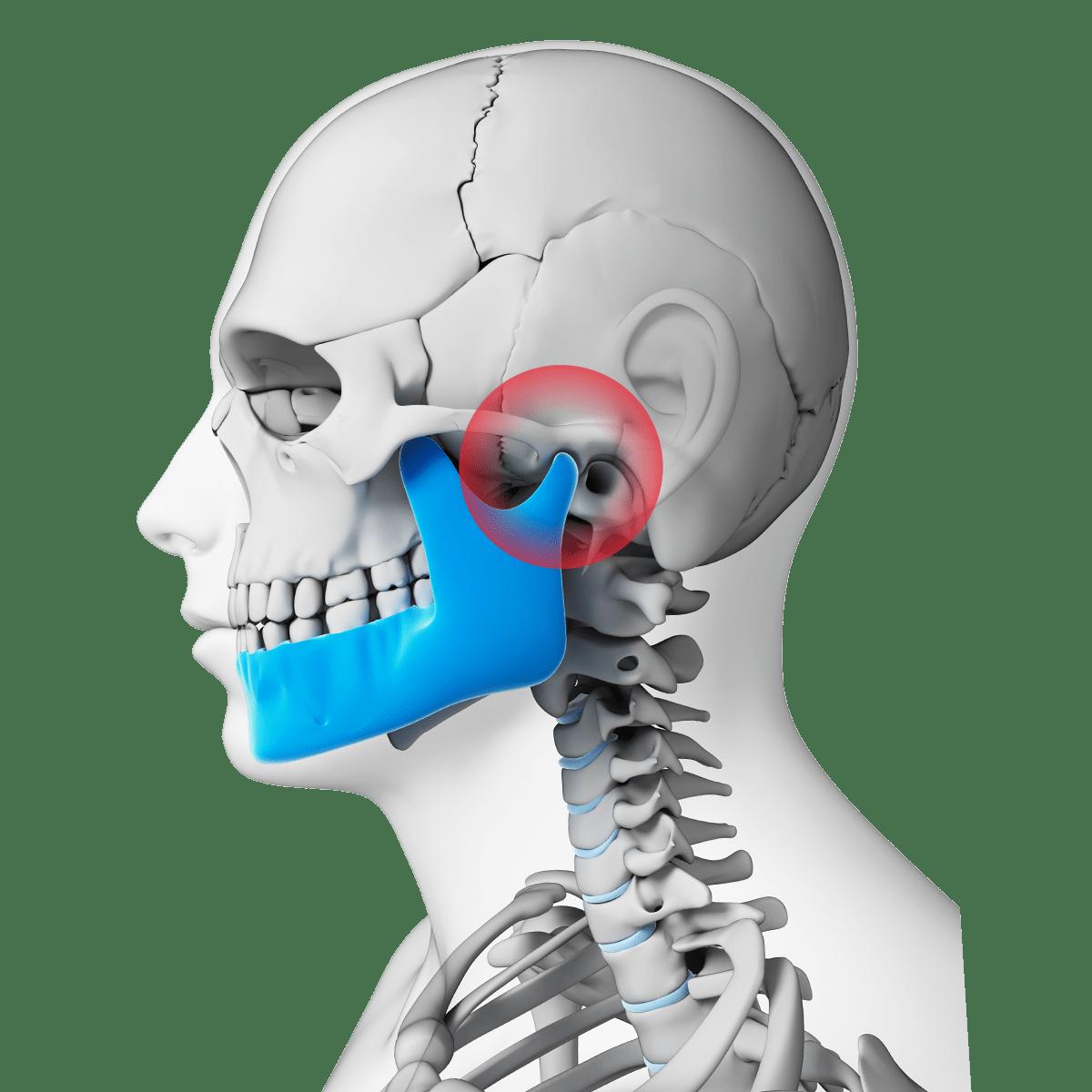 hight resolution of digital illustration of neck and skull highlighting the tmj