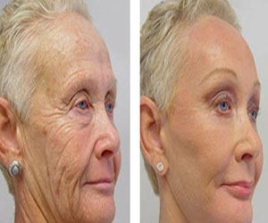 Don't Use Botox, Do This Instead: Granny Reveals $39 Method