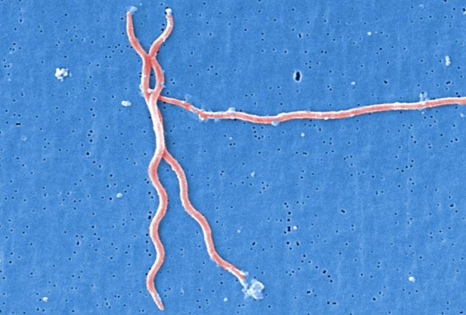 Column: Can scientists predict a bad Lyme disease season? | PBS ...