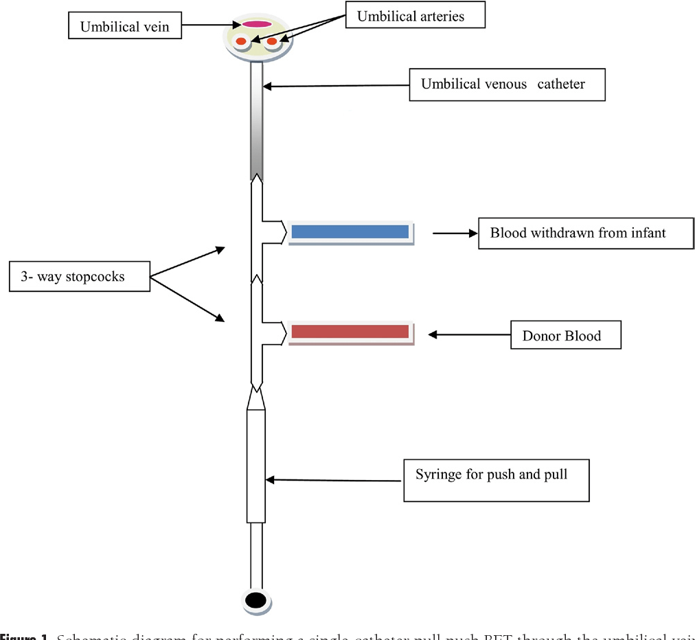 Blood exchange transfusion for infants with severe