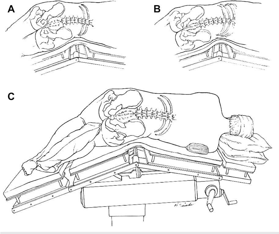 Figure 1 from ADVANCES IN ANESTHESIA Positioning Injuries