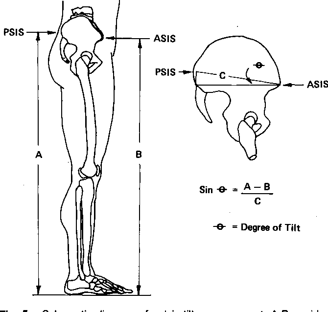 Figure 5 from Pelvic tilt. Intratester reliability of
