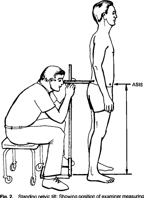 Figure 3 from Pelvic tilt. Intratester reliability of