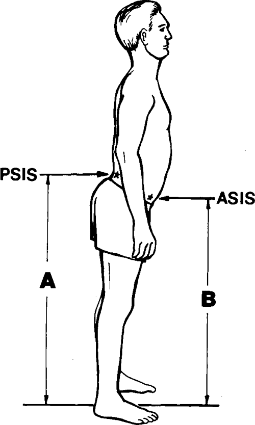 Figure 1 from Pelvic tilt. Intratester reliability of