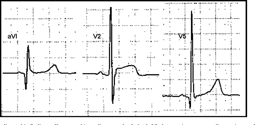 Figure 10 from The electrocardiogram in the patient with
