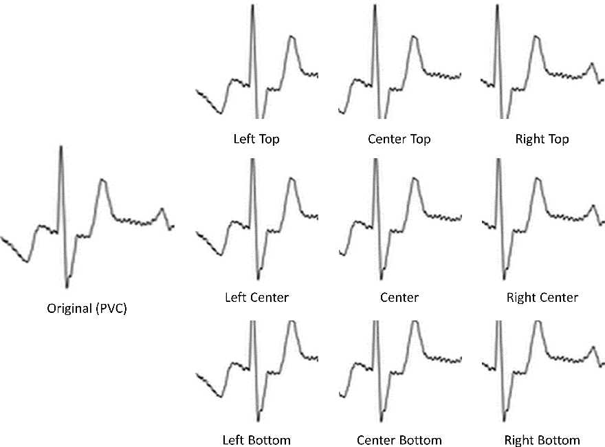 Table 1 from ECG arrhythmia classification using a 2-D