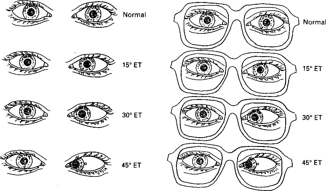 Figure 6 from corneal reflex test in spectacle wearers