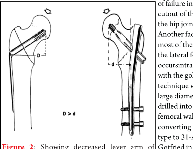 Figure 2 from Intramedullary Nail Versus Dynamic Hip Screw