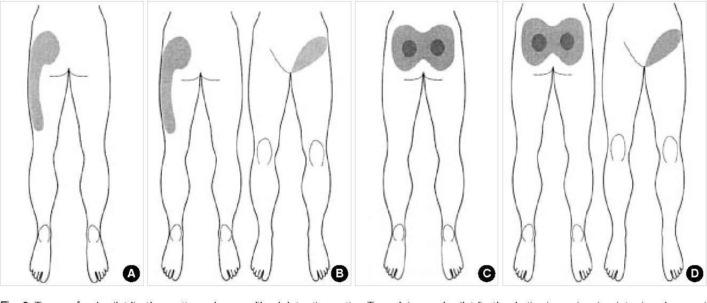[PDF] Usefulness of Pain Distribution Pattern Assessment