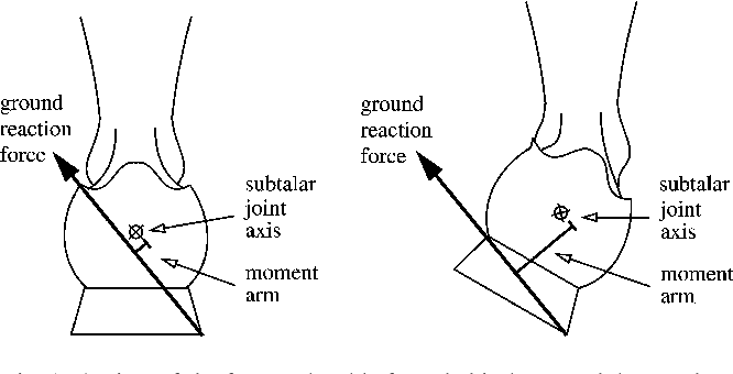 Figure 1 from The influence of foot positioning on ankle