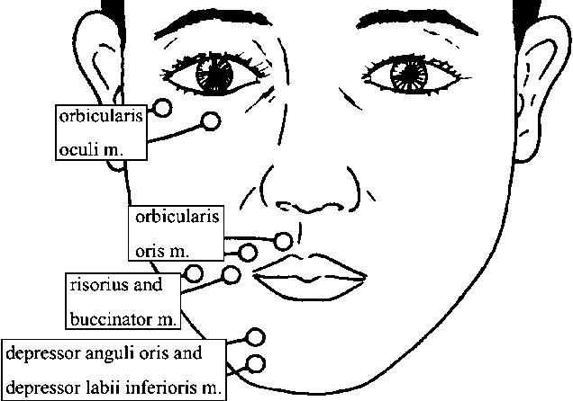 Figure 2 from Mouth movement disturbance as a sequela of