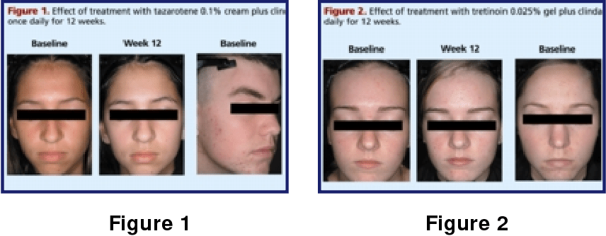 [PDF] Tazarotene 0.1 percent cream plus clindamycin 1 ...
