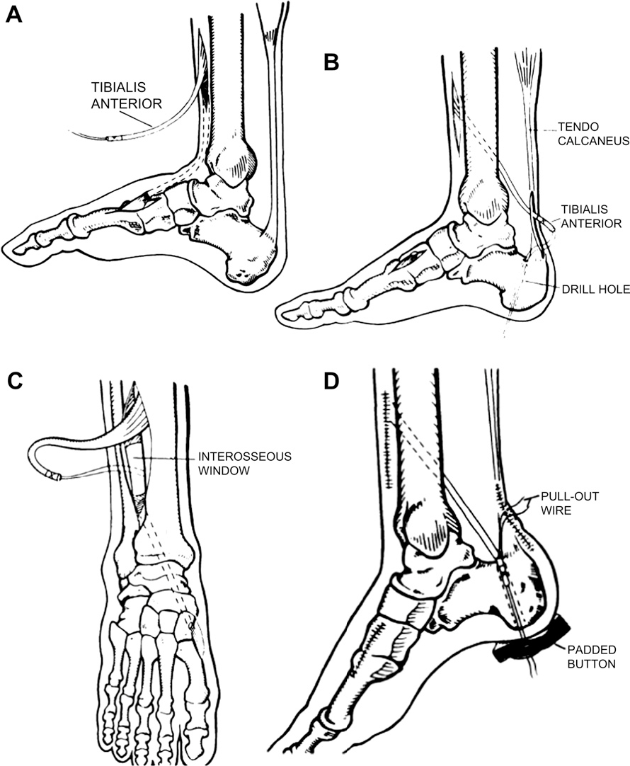 Figure 4 from Tendon transfers for Achilles reconstruction